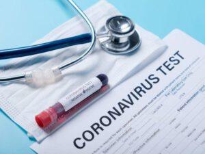 Koronavirusla bağlı vəziyyəti 12 dəqiqəyə göstərən testlər satışa çıxarılıb