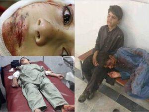 Pakistanda İslam məktəbində partlayış: Çox sayda ölənlər və yaralananlar var – FOTO
