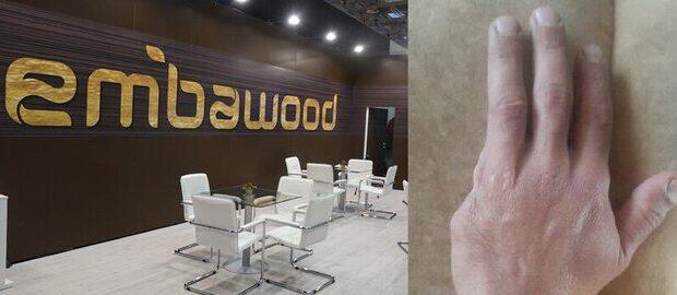 """""""Embawood"""" da QALMAQAL: İşçinin barmağı QOPDU, şirkət isə… – FOTOLAR"""